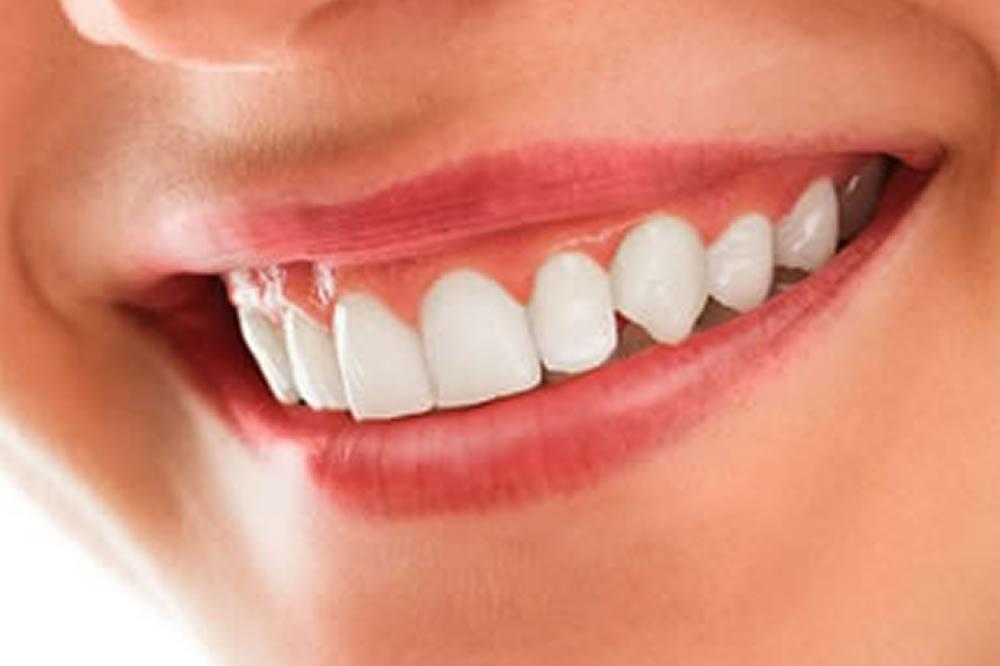 歯ぐきとの境目の黒ずみ