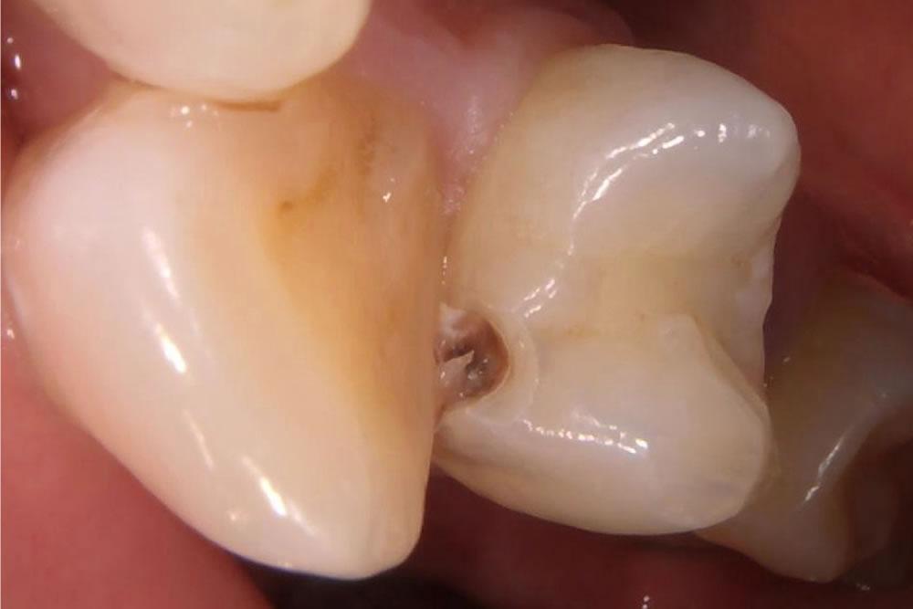 虫歯治療の実施