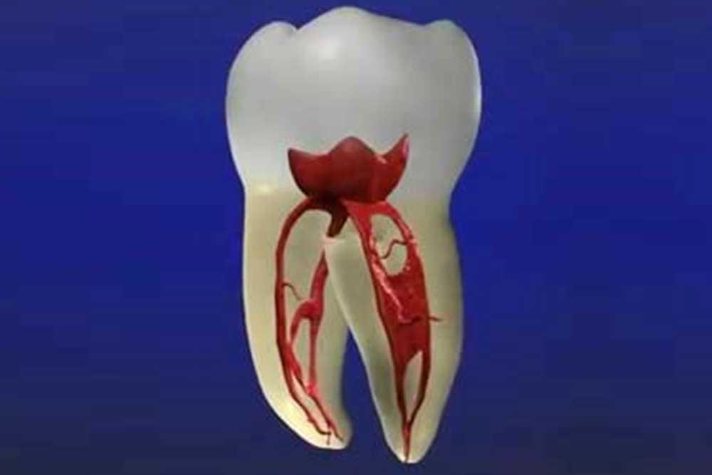 虫歯や歯周病の治療