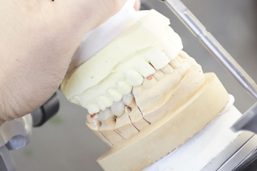 入れ歯の製作・修理