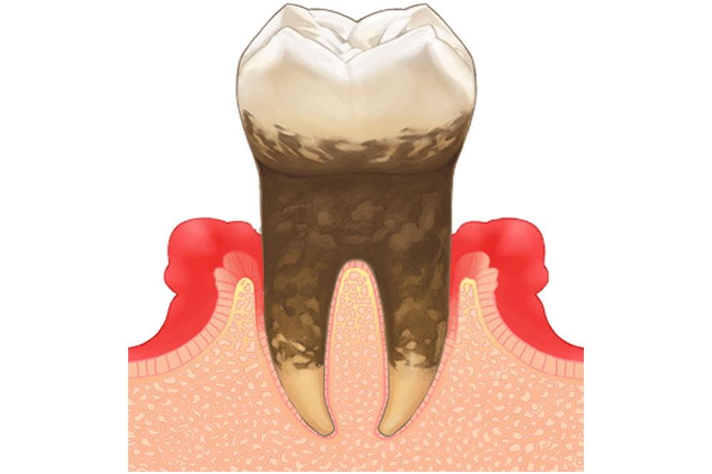 歯周再生療法