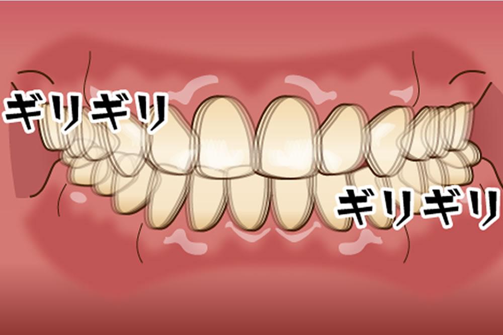 過度な食いしばりや歯ぎしり