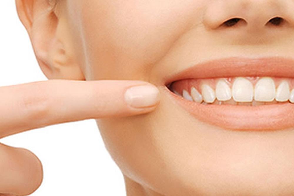 親知らず抜歯後の腫れの緩和